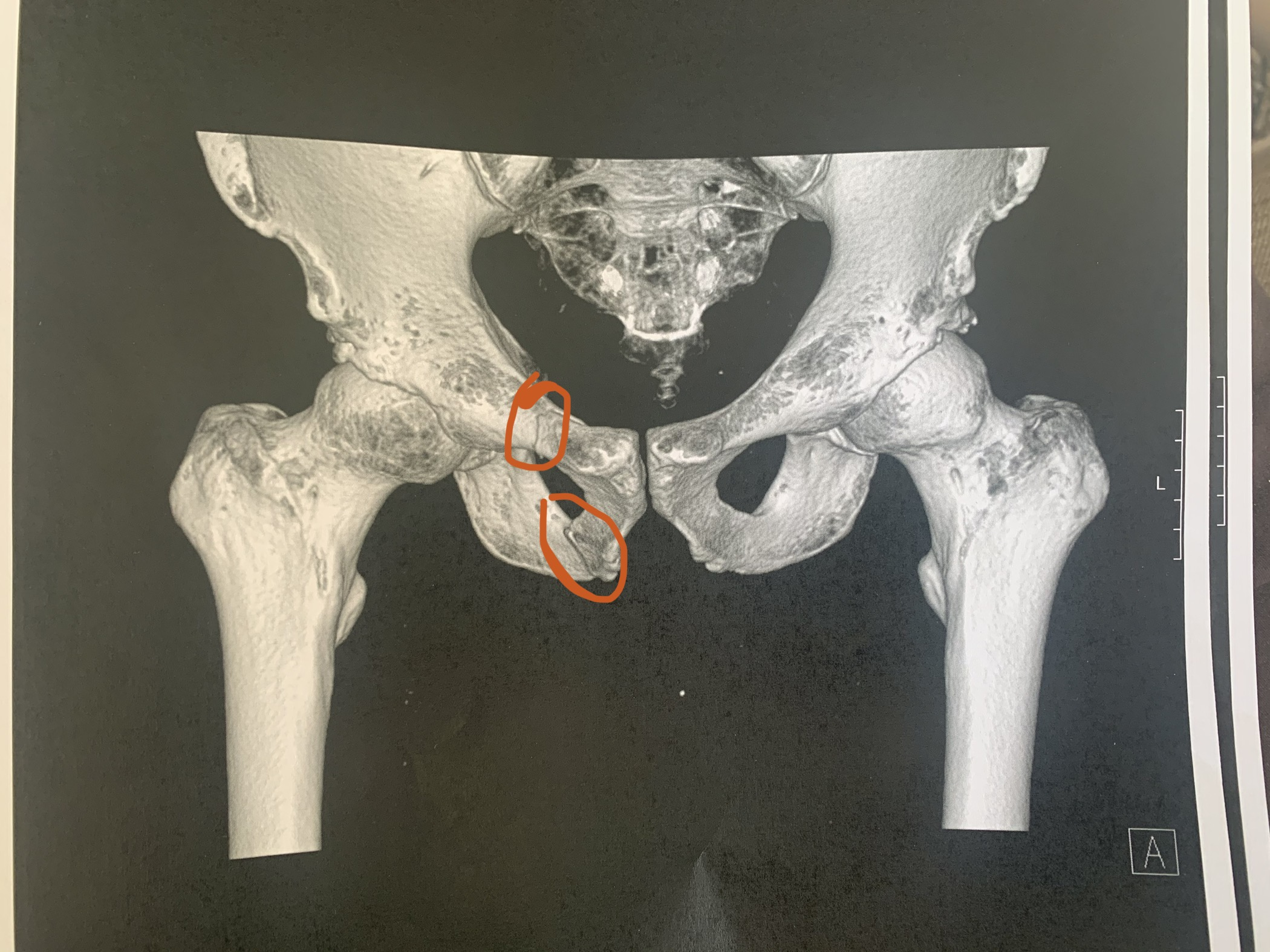 CT Scan showing the mildly/moderately displaced fractures of my pelvis
