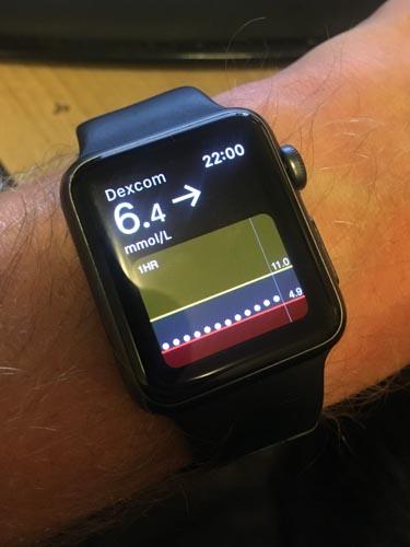 Dexcom G5 Mobile App - it works on my watch, too!